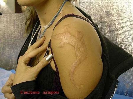 svedenie-tatuirovok
